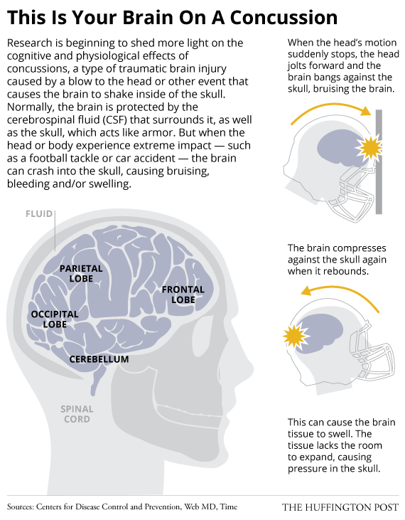 The Devastating Health Impact Of >> The Devastating Health Impact Of Concussion May Start Earlier Than