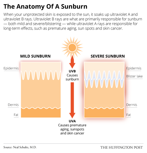 What Actually Happens When You Get A Sunburn Huffpost