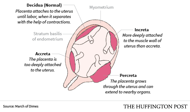 what is sheep placenta